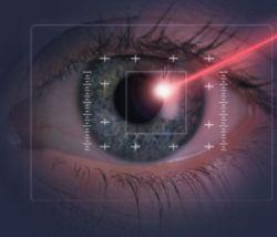 correzione miopia inverevento medico chirurgia