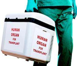 IVA: si calcola anche su trasporto organi e prelievi